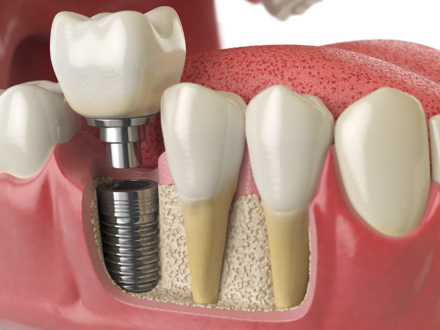 anatomy of healthy teeth and dental implant